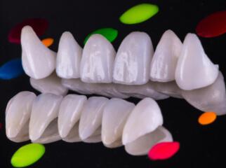 Šypsenos tobulinimas anksčiau ir dabar. Ką odontologija mums gali pasiūlyti šiandien?